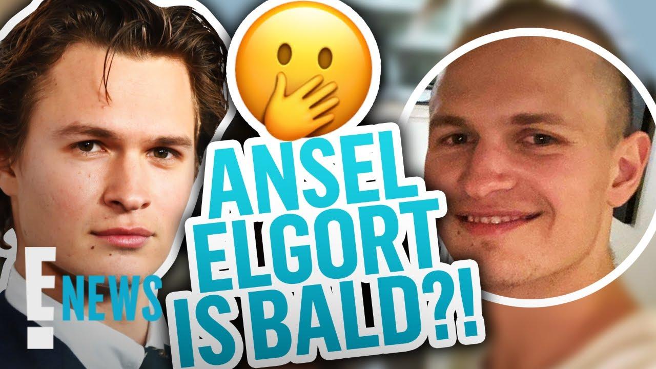 Ansel Elgort Resurfaces on Social Media With a Bald Head   E! News